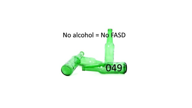 049 FASD