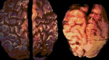 Prenatal Alcohol Exposure and the Brain